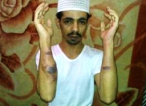 Saudi Prisoner Al Ghamdi , Died due to torture