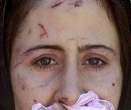 Syrian Rape Victim at Turkish Refugee Camp