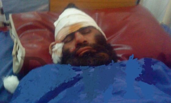Madressa e Hussainia , Peshawar Blast Suspect
